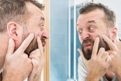 Man looking at pimples on his face. Adult man investigating his pimples on face. Guy trying to get rid of pimple squeezing it royalty free stock image