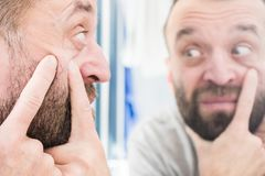 Man looking at pimples on his face. Adult man investigating his pimples on face. Guy trying to get rid of pimple squeezing it stock photography