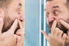 Man looking at pimples on his face. Adult man investigating his pimples on face. Guy trying to get rid of pimple squeezing it royalty free stock photography