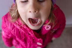 Adult permanent teeth coming in behind baby teeth: shark teeth. Opened mouth of little girl Stock Photo