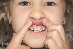 Adult permanent teeth coming in front of the child`s baby teeth: shark teeth. Little girl`s open mouth stock photography