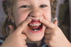 Adult permanent teeth coming in front of the child`s baby teeth: shark teeth royalty free stock images