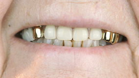 Adult woman with false teeth smiling at camera stock video