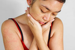 Adult woman with skin allergy rash Stock Photography