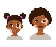 Adulto e criança com vitiligo ilustração royalty free
