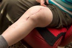 Adulto mayor con la cicatriz en rodilla Fotos de archivo libres de regalías