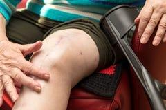 Adulto mayor con la cicatriz en rodilla Foto de archivo libre de regalías