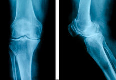 Advanced osteoarthritis Royalty Free Stock Photo