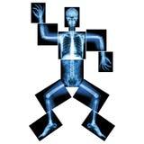 Aerobic Dance(human bone is dancing) Royalty Free Stock Photos