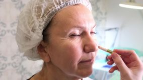 Aesthetic medicine. The cosmetic surgeon makes marks on the face women 50-60 years. preparation for filling injections.