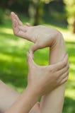 Affection génétique de tissu conjonctif Images stock