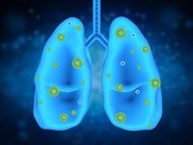 Affection pulmonaire avec des cellules de bactéries photo stock