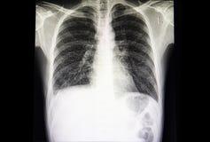 affezione polmonare interstital con versamento pleurico minimo fotografia stock libera da diritti