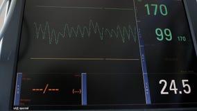 Affichage de l'électrocardiographe, graphiques de l'activité électrique du battement de coeur du patient et tension artérielle, d banque de vidéos