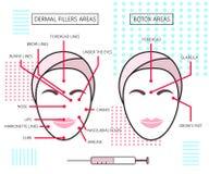Affiche d'Infograthic au sujet des remplisseurs et des ares cutanés de botox injections cosmétologie beauté Illustration de vecte Images stock