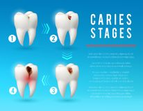 Affiche de la carie dentaire 3d du développement de carie dentaire illustration libre de droits