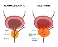 Affiche de pathologie de prostatite illustration stock