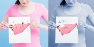 Affischtavla för lever för kvinnatagande vård- royaltyfri fotografi