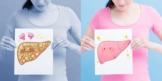 Affischtavla för lever för kvinnatagande vård- arkivbild