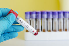 AFP positive. Blood sample with AFP (Alfa-fetoprotein, tumor marker for liver) positive Royalty Free Stock Image