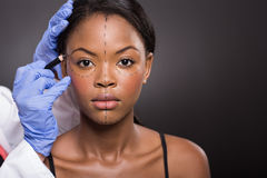 African woman correction mark. Young african woman with correction mark for plastic surgery Royalty Free Stock Image