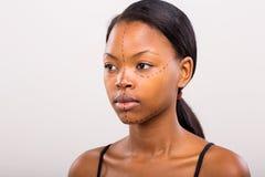 African woman plastic surgery Stock Photos