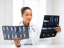Afrikaanse arts die röntgenstralen bekijken Stock Afbeelding