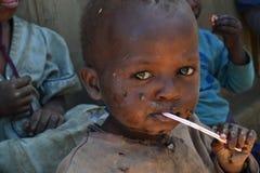 Afrikansk gullig pojke Fotografering för Bildbyråer