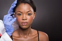 Afrikansk kvinnakorrigeringsfläck Royaltyfri Bild