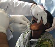 Afrikansk tand- behandling arkivbild