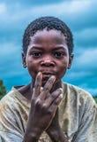 Afrykańska chłopiec z ekspresyjnym spojrzeniem na twarzy, pokazuje jego odwodnione i przetarte prac ręki zdjęcia stock