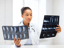 Afrykanina doktorscy patrzeje promieniowania rentgenowskie Obraz Stock