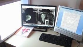Aftasten medische test /examination in het modern ziekenhuis De machine en de schermen van MRI met arts stock videobeelden