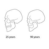 Age changes of the skull. Illustration of age-related changes of the skull Royalty Free Stock Photography