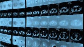 Aggiusti il orage umano di studio & disossi il animale-ct la ricerca, i raggi x, metastasi del Cancro stock footage