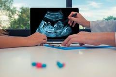 Aggiusti la mostra della ricerca del feto su un computer portatile ad un paziente della donna Sanità circa il bambino durante la  immagine stock libera da diritti
