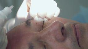 Aggiusti le gocce del gocciolamento sulla palpebra del paziente ed anestetizza la pelle prima della procedura video d archivio