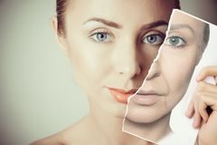 Aging problems of face skin. Aging problems of young face skin stock photography