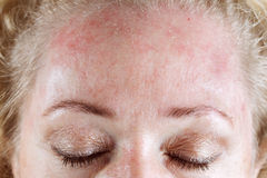 Aging skin. Mature woman's very dry & peeling skin royalty free stock images