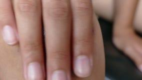 Agirl reibt ihre Finger mit einer heilenden Salbe in einem gequetschten Knie stock footage