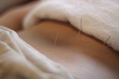 Ago di agopuntura Fotografie Stock Libere da Diritti