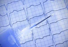 Ago medico con la siringa su ECG fotografia stock libera da diritti