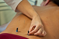 Agopuntura Fotografie Stock Libere da Diritti
