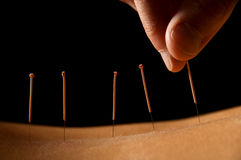 Agopuntura Fotografia Stock Libera da Diritti
