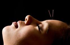 Agopuntura Immagini Stock