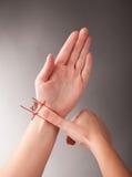Agopuntura CUN fotografia stock libera da diritti
