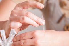 Agopuntura di Needeling fotografia stock libera da diritti