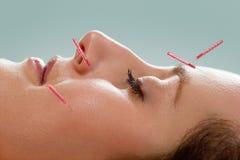 Agopuntura facciale Immagini Stock Libere da Diritti