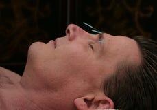Agopuntura facciale fotografie stock libere da diritti