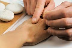 agopuntura Treatmen della medicina cinese Fotografia Stock Libera da Diritti